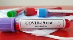 COVID 19,